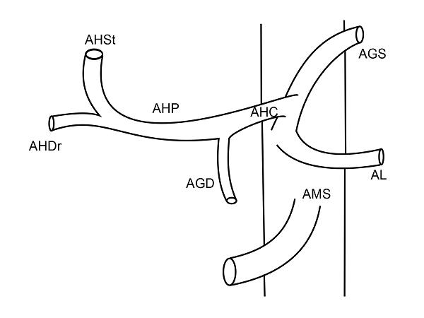 Anatomia arteriala hepatica tip X