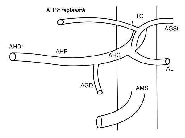 Anatomia arteriala hepatica tip II