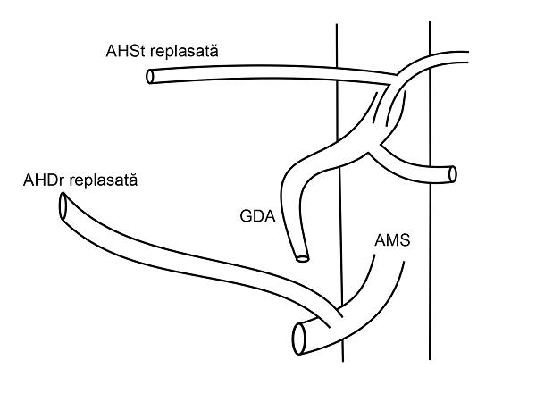 Anatomia arteriala hepatica tip IV