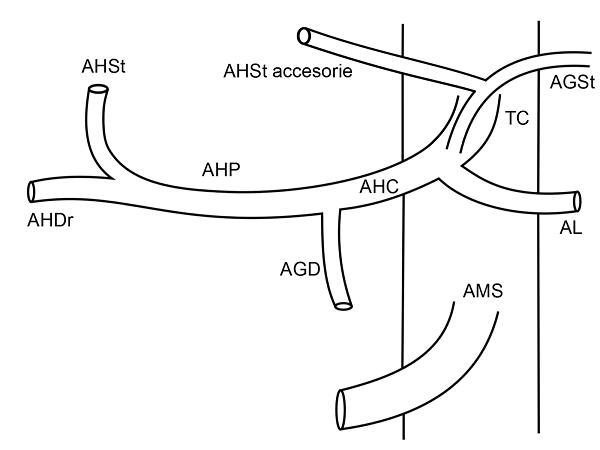 Anatomia arteriala hepatica tip V