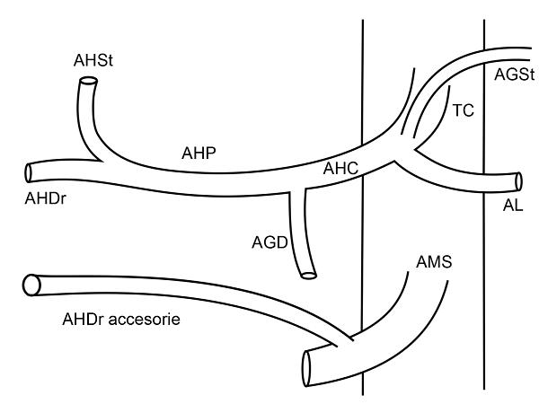 Anatomia arteriala hepatica tip VI