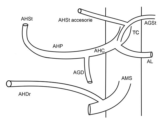Anatomia arteriala hepatica tip VIII